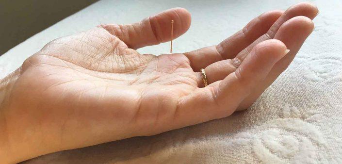En klient hos Aku-Fysio Klinik modtager en Acunova behandling mod øjenlidelser.