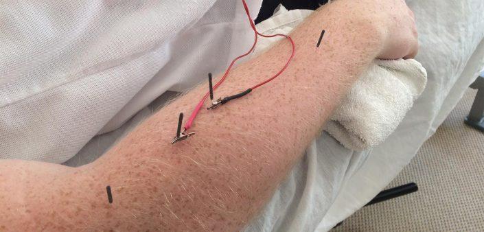 En klient modtager en Akupunktur behandling hos Aku-Fysio Klinik