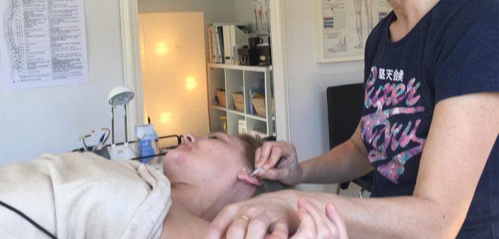 En klient modtager en Auriculo terapi behandling hos Aku-Fysio Klinik