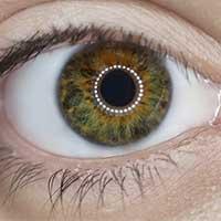Viser et øje tæt på. Øjenlidelser kan behandles hos Aku-Fysio Klinik.