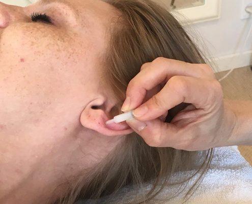 En klient modtager en fransk øreakunpunktur behandling hos Aku-Fysio Klinik