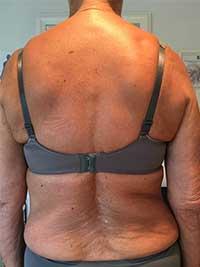 Viser et billede af en midaldrende kvinde med en skoliose d.v.s. en skæv ryg.