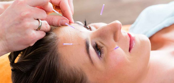 En klient modtager Kosmetisk Akupunktur hos Aku-Fysio Klinik