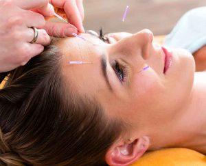 En klient modtager Kosmetisk Akupunktur behandling hos Aku-Fysio Klinik
